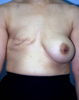 Breast Reconstruction  before 1357606