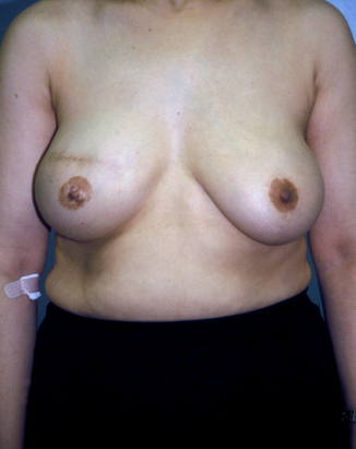 Breast Reconstruction  after 1357606