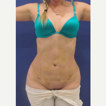 35-44 year old woman treated with Liposuction after 3663917