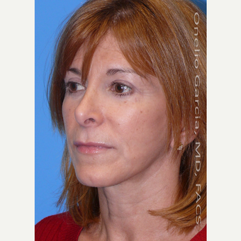 35-44 year old woman treated with Facelift after 3008511