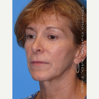 35-44 year old woman treated with Facelift before 3008511