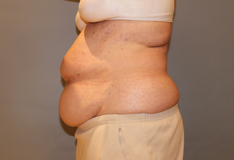 The power and limitations of Coolsculpting of the abdomen and flanks before 1672902