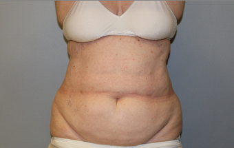 The power and limitations of Coolsculpting of the abdomen and flanks 1672902