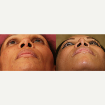 African American Rhinoplasty before 3424002