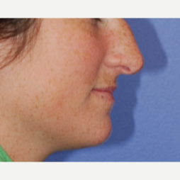 18-24 year old woman treated with Rhinoplasty before 3619302
