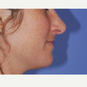18-24 year old woman treated with Rhinoplasty after 3619302