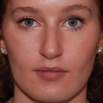 18-24 year old woman treated with Rhinoplasty before 3624349
