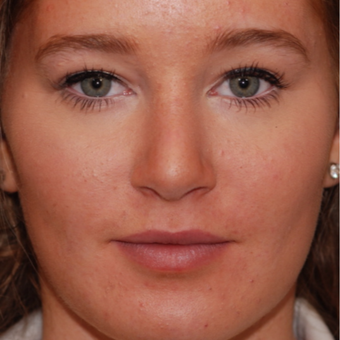 18-24 year old woman treated with Rhinoplasty after 3624349