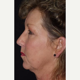 55-64 year old woman treated with Facelift before 3481297