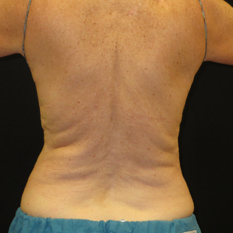 65-74 year old woman treated with CoolSculpting before 3575513