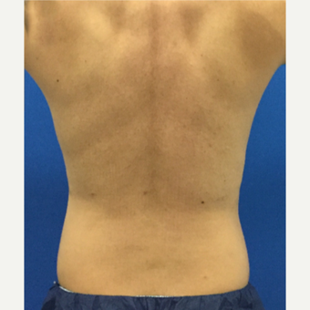 35-44 year old man treated with Liposculpture after 3221157