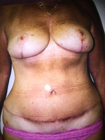 45-54 year old woman treated with Breast Lift after 3333624