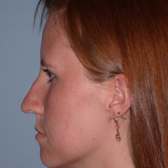 25-34 year old woman treated with Rhinoplasty before 3702866