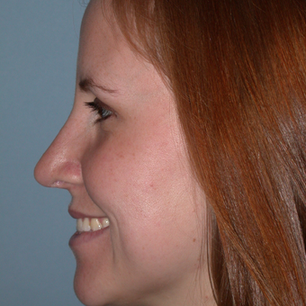 25-34 year old woman treated with Rhinoplasty after 3702866