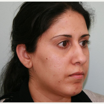 35-44 year old woman treated with Rhinoplasty before 3243030