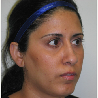 35-44 year old woman treated with Rhinoplasty after 3243030