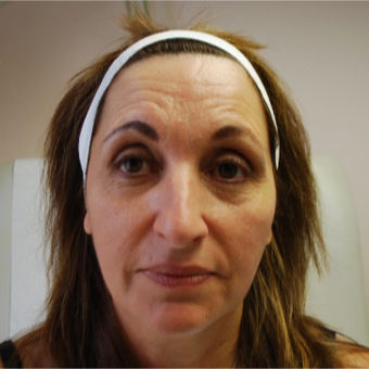 45-54 year old woman treated with Voluma before 3613638