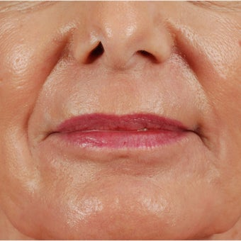 55-64 year old woman treated with Laser Resurfacing for lip lines after 1829719