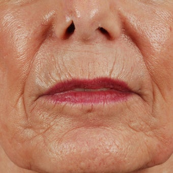 55-64 year old woman treated with Laser Resurfacing for lip lines before 1829719