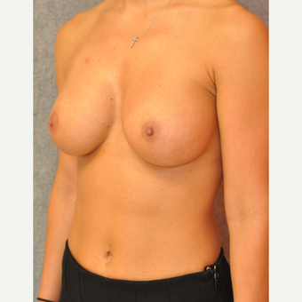25-34 year old woman treated with Breast Augmentation after 3842349