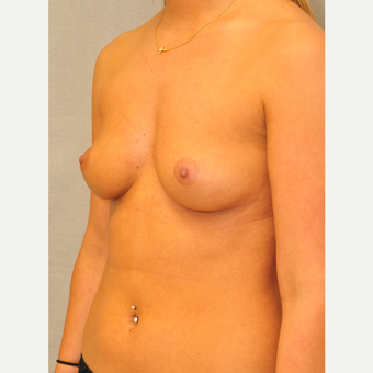 25-34 year old woman treated with Breast Augmentation before 3842349