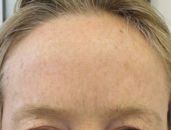 40 year old female treated for frown lines with Botox after 1245360