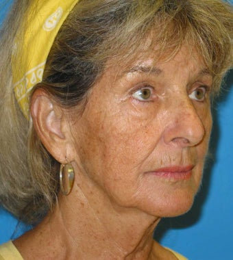 74 Year old woman treated for loss of facial volume with Sculptra before 1007719