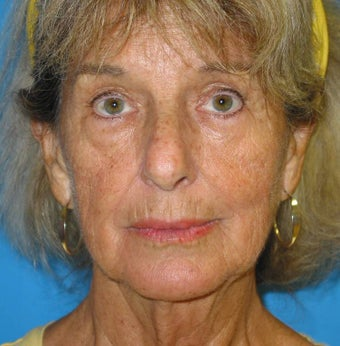 74 Year old woman treated for loss of facial volume with Sculptra 1007719