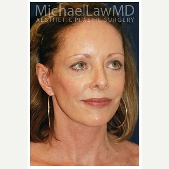 65-74 year old woman treated with Facelift Revision after 2348147