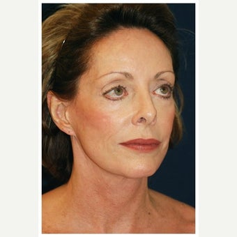 65-74 year old woman treated with Facelift Revision before 2348147