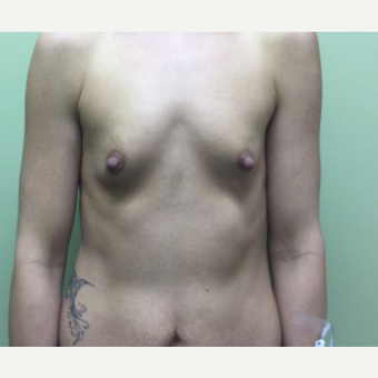25-34 year old woman treated with Breast Augmentation before 3012194