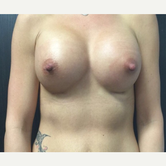 25-34 year old woman treated with Breast Augmentation after 3012194