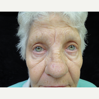 65-74 year old woman treated with Eyelid Surgery after 3823354