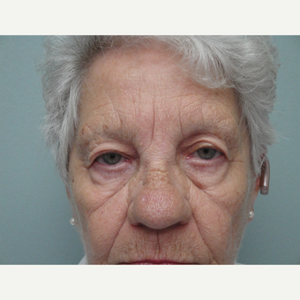65-74 year old woman treated with Eyelid Surgery before 3823354