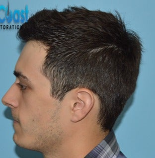 25-34 year old man treated with Hair Transplant after 3604771
