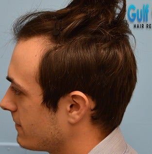 25-34 year old man treated with Hair Transplant before 3604771