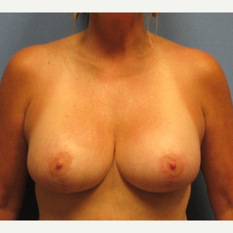45-54 year old woman treated with Breast Implants after 3174700