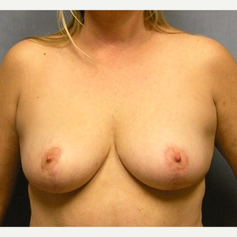45-54 year old woman treated with Breast Implants before 3174700