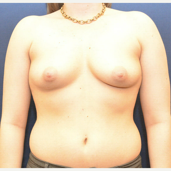25-34 year old woman treated with Breast Augmentation before 3726843