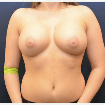 25-34 year old woman treated with Breast Augmentation after 3726843