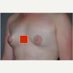 Breast Lift with Implants before 3058187
