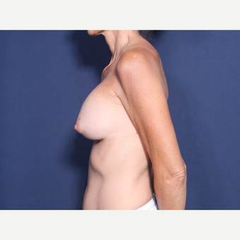 45-54 year old woman treated with Breast Implant Revision (view 2 of 2) before 3424253