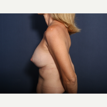 45-54 year old woman treated with Breast Implant Revision (view 2 of 2) after 3424253