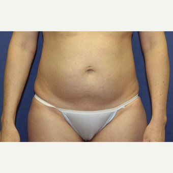 39 year old woman with an abdominoplasty with rectus plication before 3180952