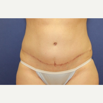 39 year old woman with an abdominoplasty with rectus plication after 3180952