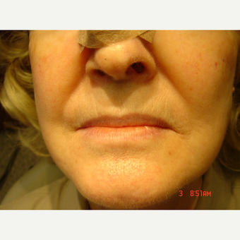 35-44 year old woman treated with Lip Augmentation before 2759044