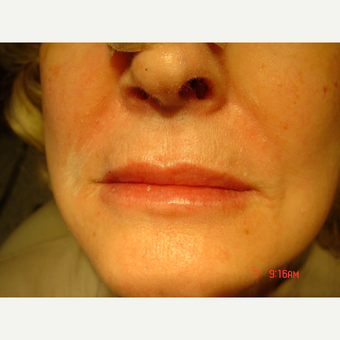 35-44 year old woman treated with Lip Augmentation after 2759044