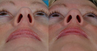31-year-old woman treated with Rhinoplasty. after 341949