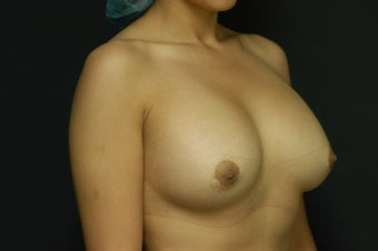 25-year old female, Saline Breast Implant Removal.  Local anesthetic. before 1045931