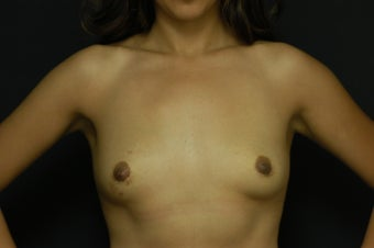 25-year old female, Saline Breast Implant Removal.  Local anesthetic. 1045931